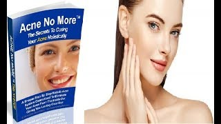 Acne No More Review - Does It Work or Scam?