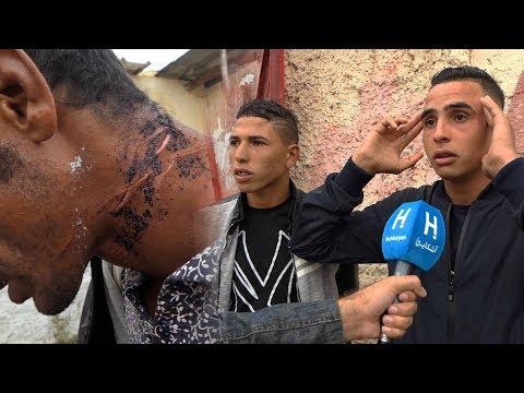 """ضحية """"قاطع الرأس"""" بالمحمدية يحكي تفاصيل الجريمة ..وساكنة """"دوار الشريف"""" تستغيت"""