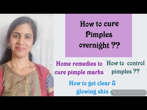 How to cure pimples overnight tamil | How to cure pimples marks from face | Pimples home remedies