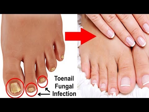3-simple-and-effective-natural-cures-for-toenail-fungus