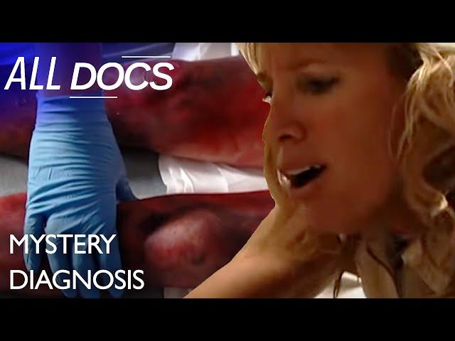 The Woman Whose Legs Turned Black: Cryoglobulinemia | Medical Documentary | Reel Truth