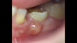 Abcès dentaire : causes, symptômes et traitement.
