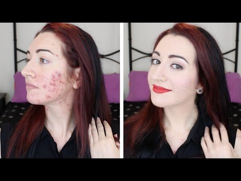 How I Cover Acne, Scarring & Redness // Makeup Transformation & Chit-Chat // Jess Bunty