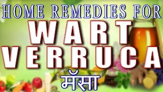 Home Remedies for Wart or Verruca-मस्सा (With English Subtitles)
