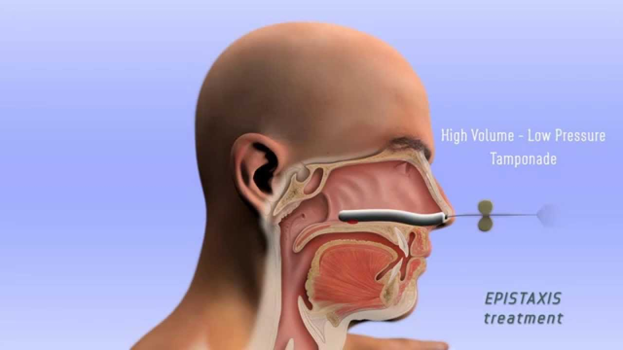 Epistaxis Treatment - 3D - YouTube