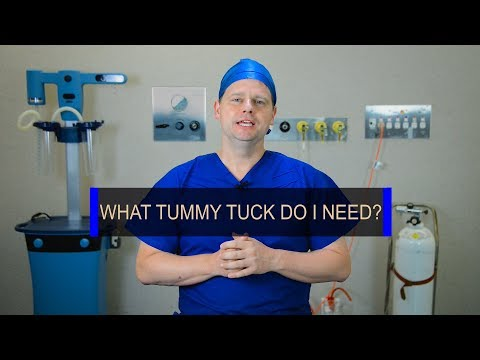 what-type-of-tummy-tuck-do-i-need?