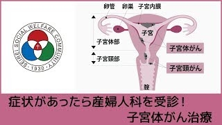 子宮体がんは、早期に発見できれば、手術のみで完治ができ、再発率も非...