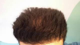Is ketoconazole good for hair
