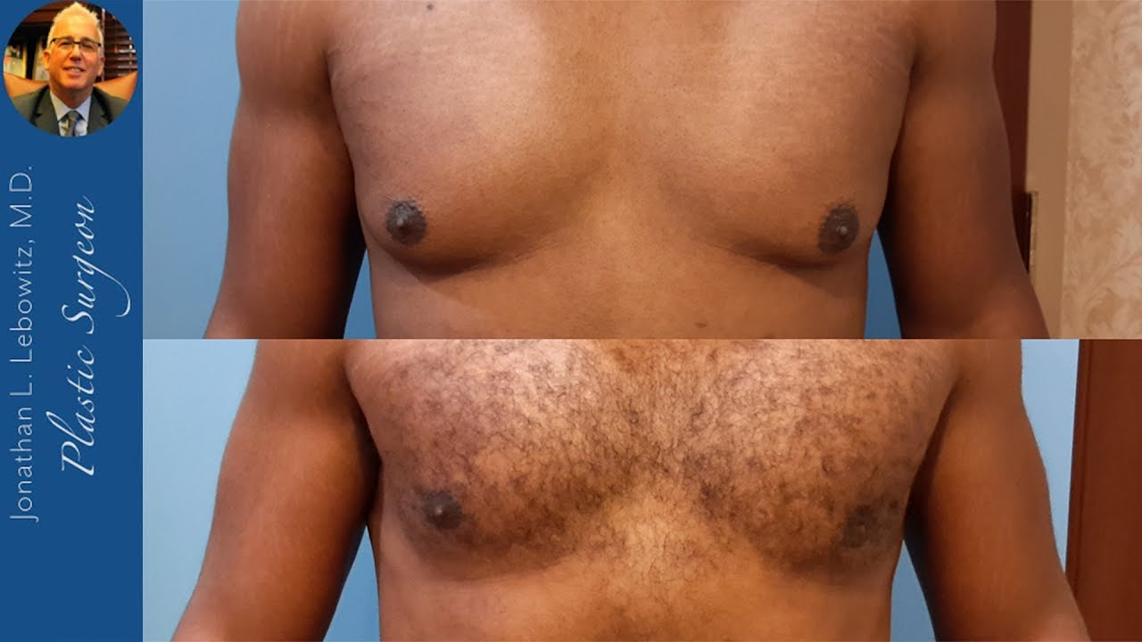Gynecomastia: 6 Months Before/After VaserLipo Hi-Def 4D Male CHEST Reduction Surgery Dr. Lebowitz NY