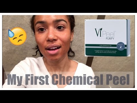 MY FIRST CHEMICAL PEEL | VLOG 1