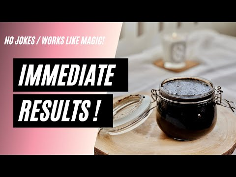 INTENSE COFFEE SCRUB TO REMOVE CELLULITES AND STRETCH MARKS IN 3 DAYS | UZZIELLE TV