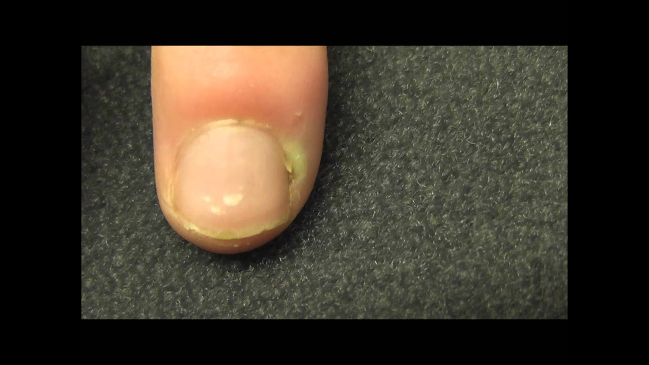 A finger infection near the nail bed or Paronychia as it is called ...