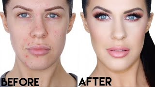 LONG LASTING FOUNDATION ROUTINE FOR COVERING ACNE + HOW I CLEARED MY SKIN!!