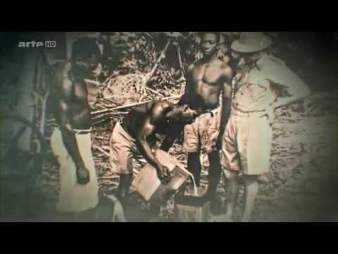 Sida, un héritage de l'époque coloniale Belge: La Rd congo ( JDO DEKOPA )