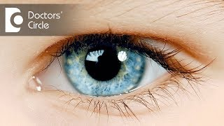 What can cause watery eyes? - Dr. Sriram Ramalingam