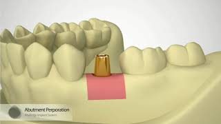 Megagen Implant Impression Coping - ਡਾਊਨਲੋਡ ਕਰੋ