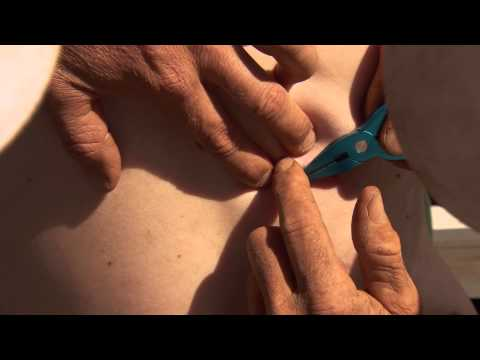 DIY Fish Hook Surgery: WARNING - not for sensitive viewers ► All 4 Adventure TV