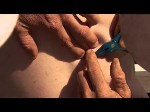 DIY Fish Hook Surgery: WARNING - Not For Sensitive Viewers ► All 4 Adventure TV