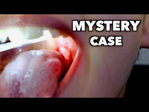 MYSTERY CASE (do you know what this is?)   Dr. Paul