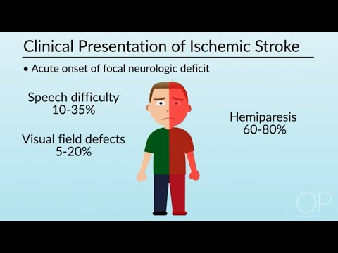 """Introduction To Pediatric Stroke Management"" By Miya Bernson-Leung For OPENPediatrics"