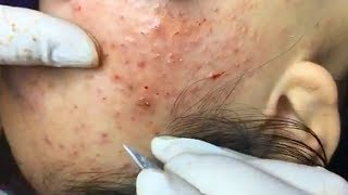 How To Remove Acne Fast At Home | Home Remedies