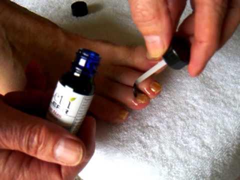 How to apply Zetaclear liquid to toenail fungus