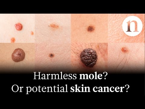 Pictures Of Cancerous Moles On The Skin