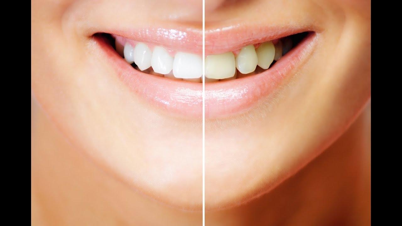 Como Fazer Clareamento Dental Caseiro Youtube