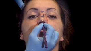 Déroulement d'une Rhinoplastie par injection d'acide hyaluronique pour corriger la bosse du nez