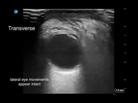 Swollen Eye - Eval with #POCUS