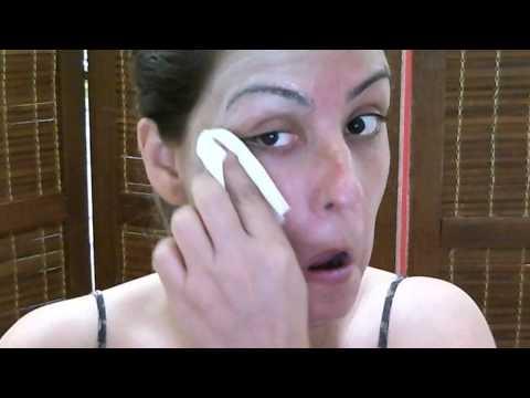 Retirando a mascara de Ivo Pitanguy