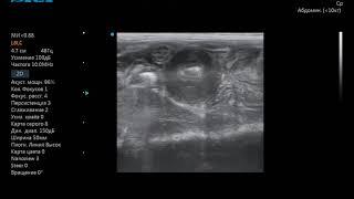 Опухоль у кошки в тонком отделе кишечника