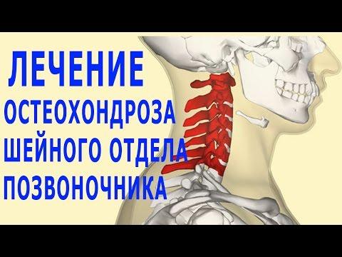Остеохондроз шейного отдела: симптомы, причины, лечение