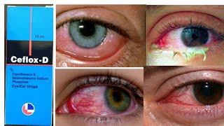 Ceflox D Eye/Ear Drops full Review Hindi | Ciplox D eye drops | Ciprofloxacin eye drops