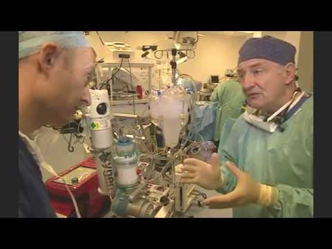 UK non-beating heart transplant is first for Europe