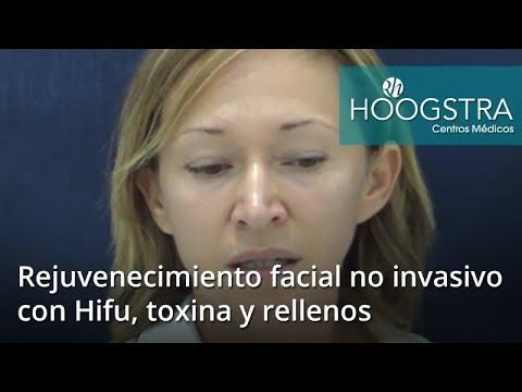 Rejuvenecimiento facial no invasivo con Hifu, toxina y rellenos (18114)