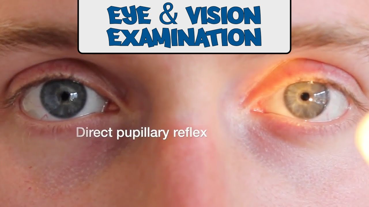 Examination of the Eyes and Vision - OSCE Guide - YouTube 4a031e0b5479