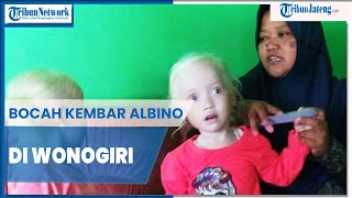 Si Albino yang Sering Dihina.