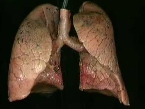 Анатомия человека. Лёгкие.