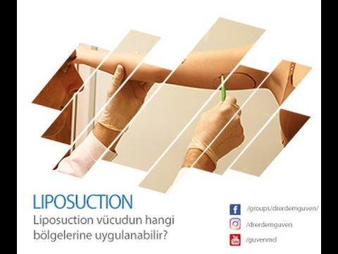 Liposuction vücudun hangi bölgelerine uygulanabilir?