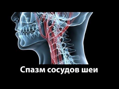 Болят сосуды на шее