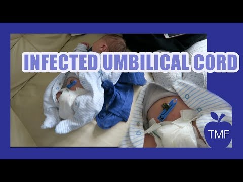 UMBILICAL CORD INFECTION?! WEEK 1 WITH NEWBORN