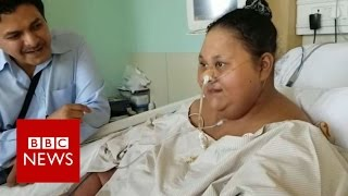 The woman who lost 240kg   BBC News