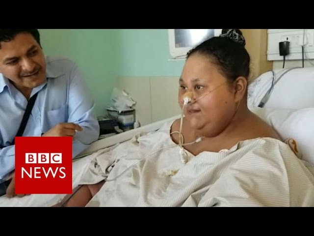 the-woman-who-lost-240kg-bbc-news