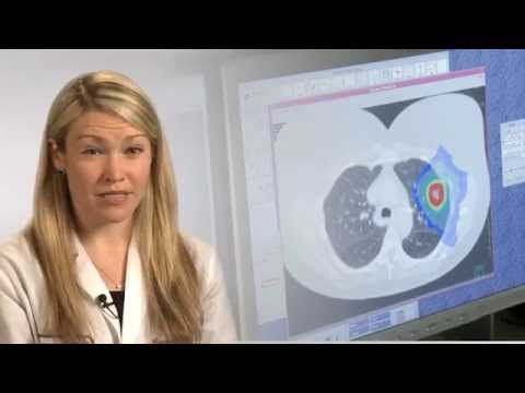 What is Stereotactic Ablative Radiotherapy (SABR)?