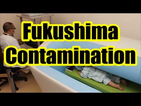 Fukushima Contamination: Children Suffer Nuclear Impact Worldwide p. 2/2
