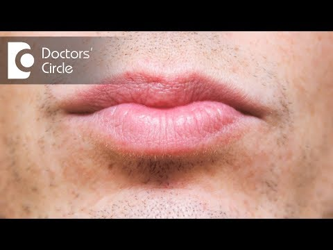 What causes discoloration below lip & its management? - Dr. Sachith Abraham