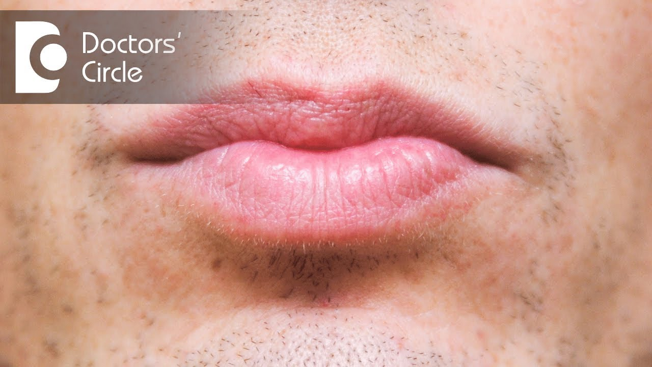 What causes discoloration below lip & its management? - Dr  Sachith Abraham