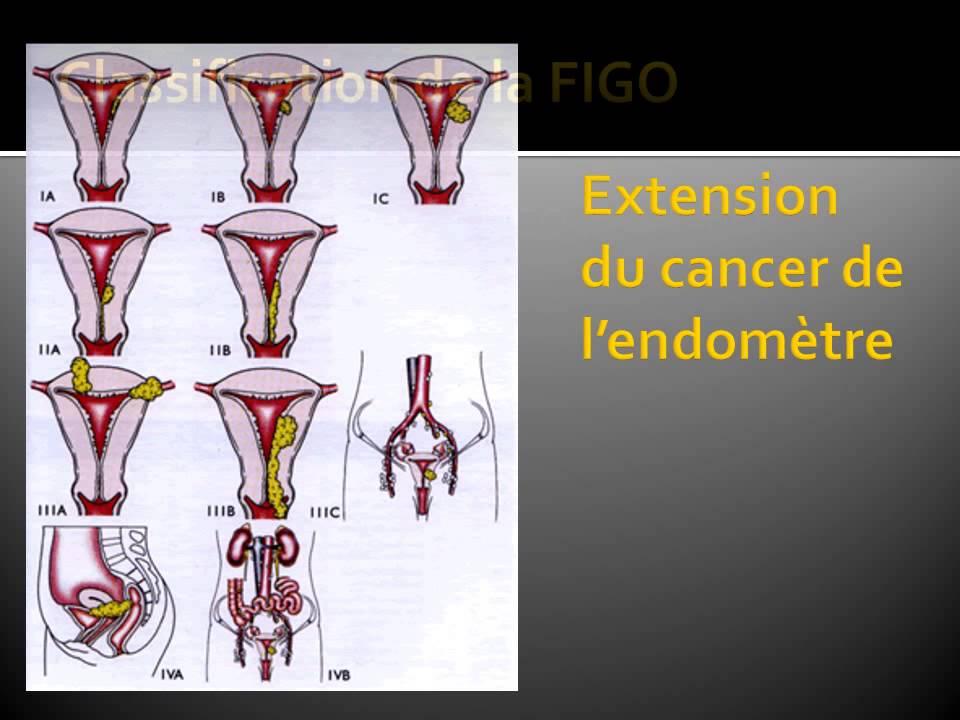 gynecologie cancer de l endom tre 3 youtube. Black Bedroom Furniture Sets. Home Design Ideas