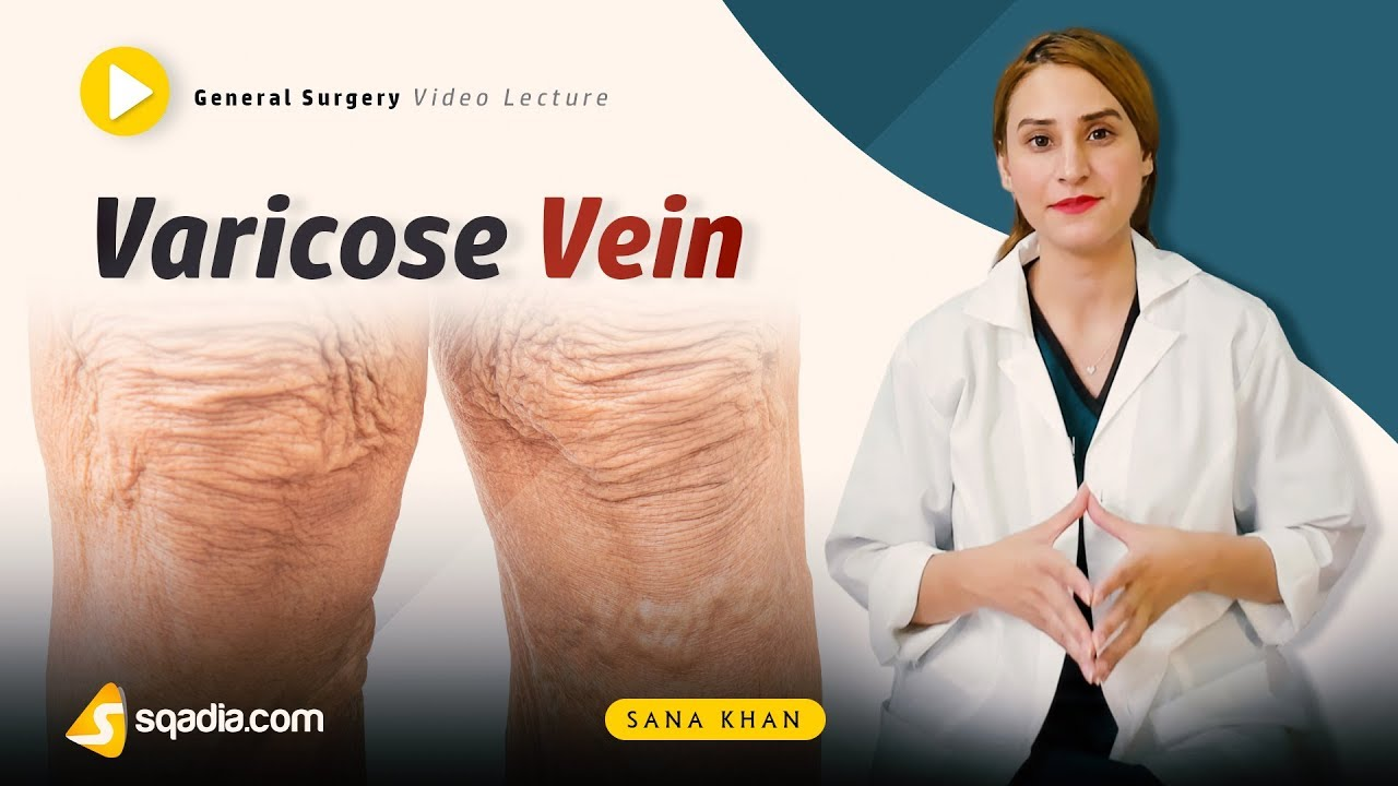 Varicose Vein | General Surgery | Video Lectures | Medical V-Learning | sqadia.com #Generalsurgery